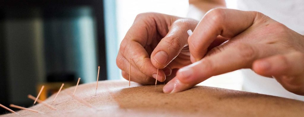 Buy Quality Acupuncture Needles Hassle-Free Online In Australia