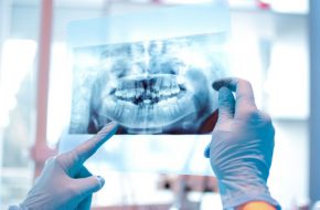What are the factors that you need to consider in having a full mouth rehabilitation?