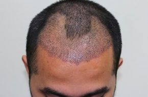 Getting The Best Results with your Hair Transplantation